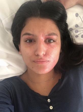 Жертва кислотной атаки продемонстрировала лицо без макияжа