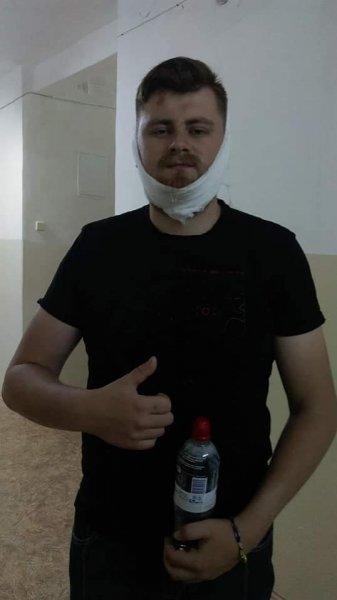 За выкрик «Слава Украине» воевавшему в Донбассе сломали челюсть